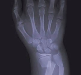Radiography of a wrist fracture