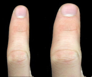 After local anaesthesia of the index finger it feels nearly a third fatter than normal, but about the same length as normal.