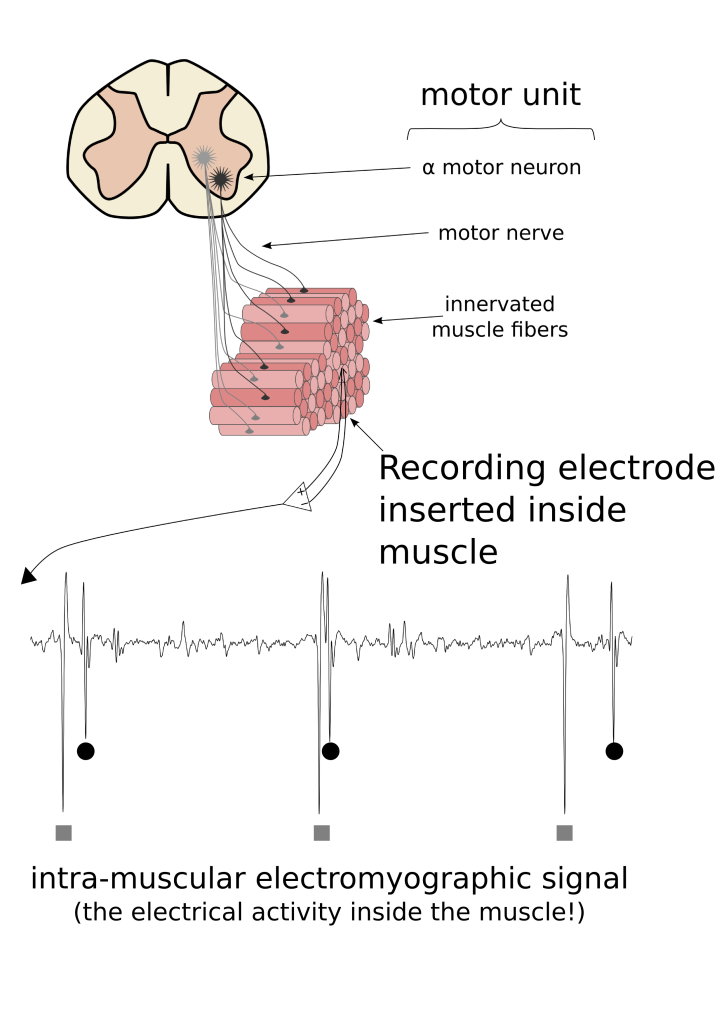 Motor units consist of a motoneuron located in the spinal cord, a peripheral axon that goes from the spinal cord to the muscle, and the various muscle fibres that are innervated by the motoneuron. When a recording electrode is positioned inside a muscle, the simultaneous activation of the muscle fibres innervated by a single motoneuron result in an electrical potential that has a characteristic shape. These shapes (motor unit action potentials) can be analysed and the activity from a single motoneuron located in the spinal cord can be determined.
