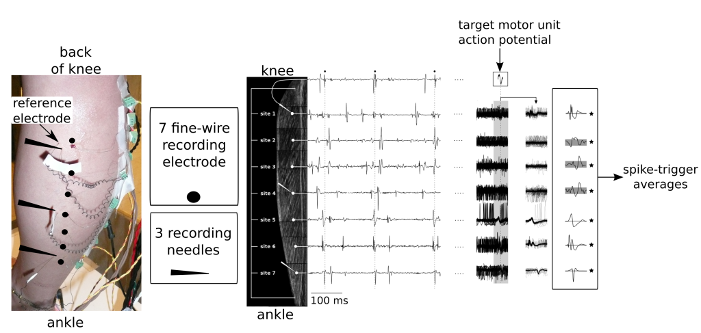 On the left we see the (scary) experimental set-up with the 3 micro-electrodes and 7 fine-wire electrodes inserted along the length of the medial gastrocnemius muscle. By recording the activity at various locations along the length of the muscle, and then using the discharge times of a target motor unit (Middle panel: small black circles on the top trace)to trigger the activity of the other recordings, spike-triggered averages could be computed. In this example, the target motor unit likely had muscle fibres along the full length of the medial gastrocnemius.