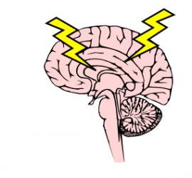 brain_zapping